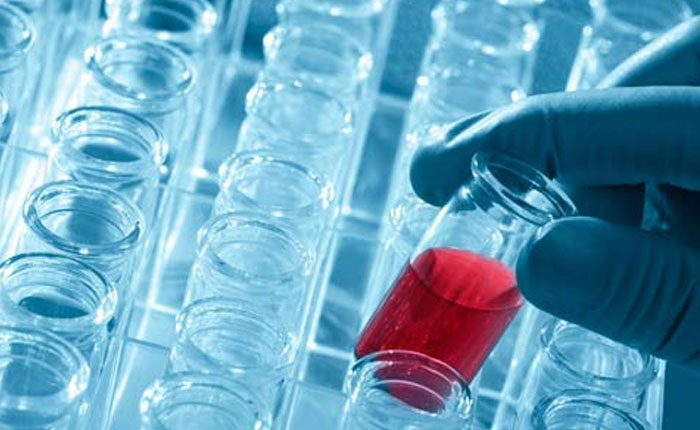 Sale a la venta la primera prueba casera del virus del Sida