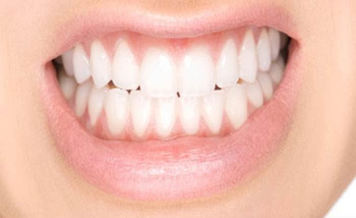 El estrés desgasta las piezas dentales