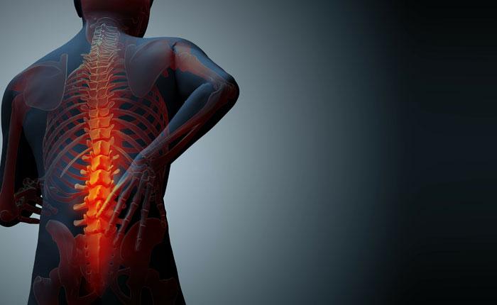 Estos factores pueden aumentar el riesgo de sufrir osteoporosis
