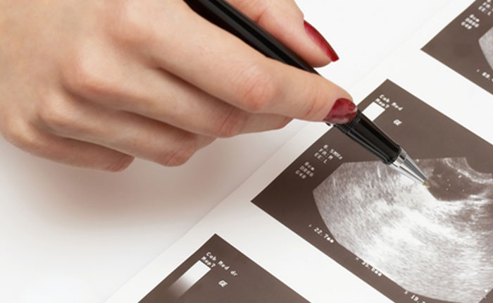 Quistes de ovario hemorrágicos normalmente no repercuten sobre la fertilidad