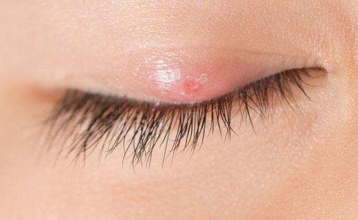 Falta de higiene en ojos es la principal causa de orzuelos