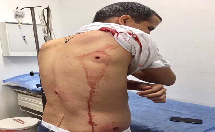Represión en varios puntos de Caracas dejó heridos, entre ellos Juan Guaidó #28Jun