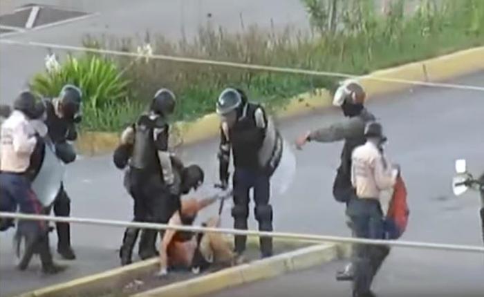 Joven Asperger golpeado por PNB y GNB en Lechería se encuentra estable tras operación