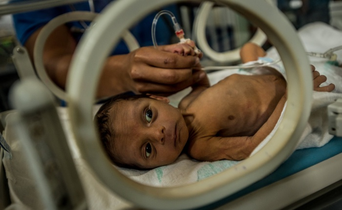 Venezuela-desnutricion2-MERIDITH-KOHUT