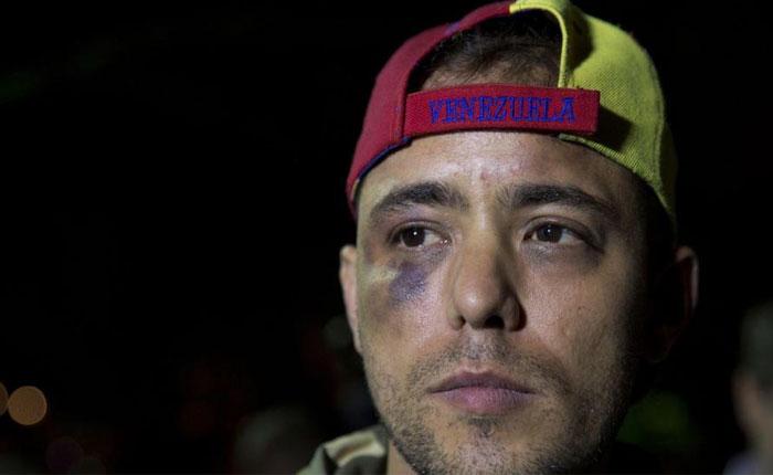 Envían a Ramo Verde al fotoperiodista Jesús Medina